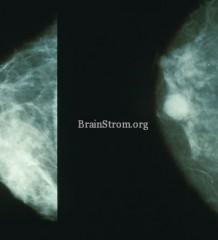 Mammo_breast_cancer